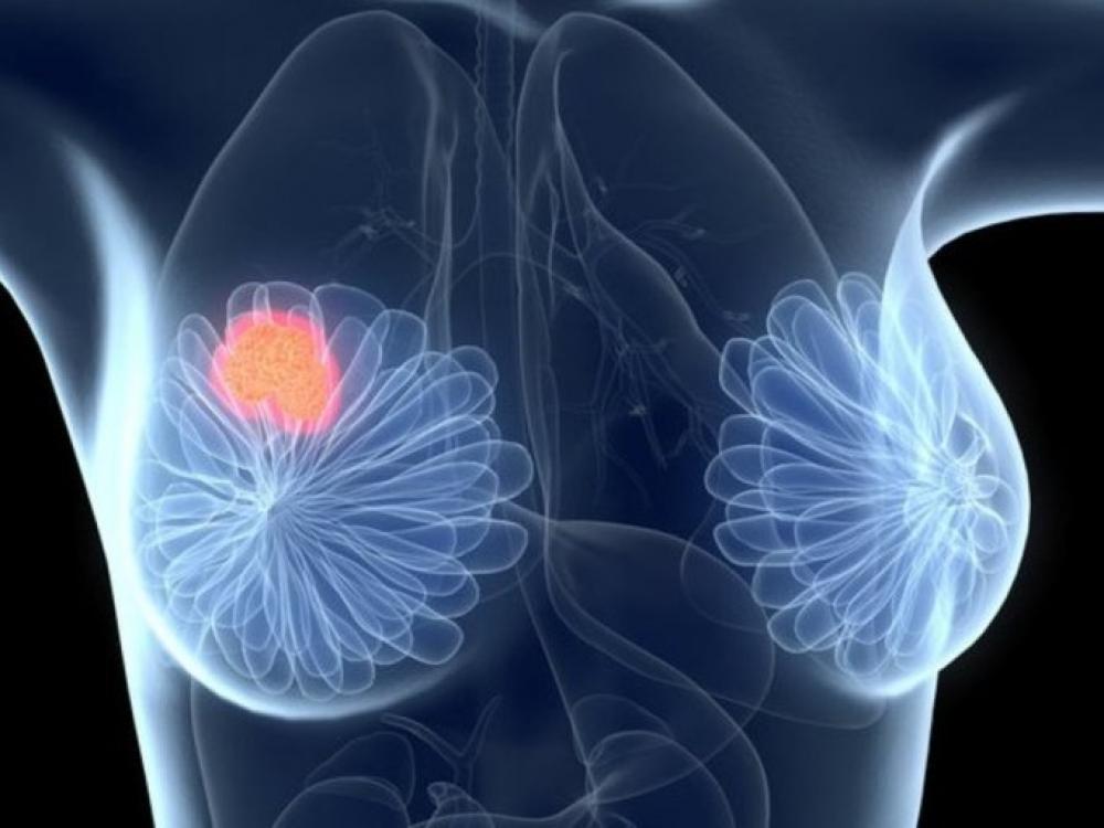 Krūties vėžys: kuo svarbus specialistų bendradarbiavimas
