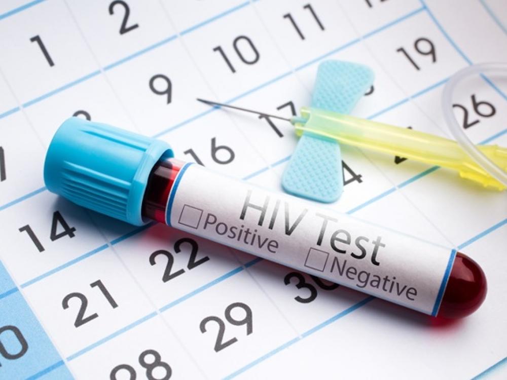 ŽIV plitimas pristabdytas: skaistesni negu skaisčiausi?