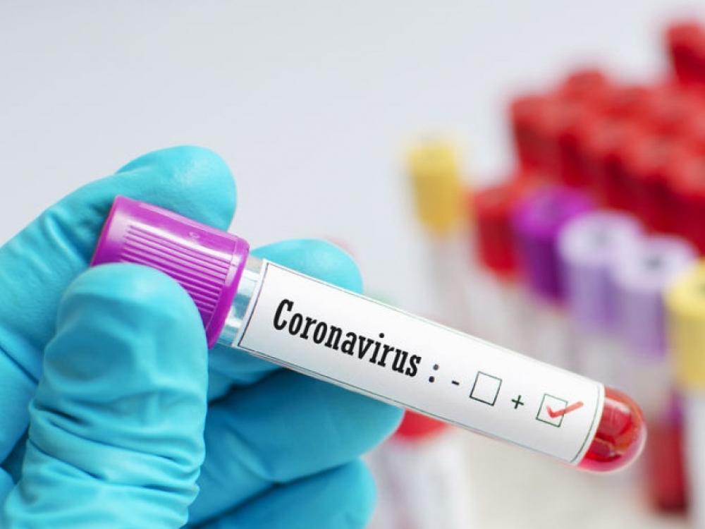 Sekmadienį patvirtinti trys nauji koronaviruso infekcijos atvejai Lietuvoje