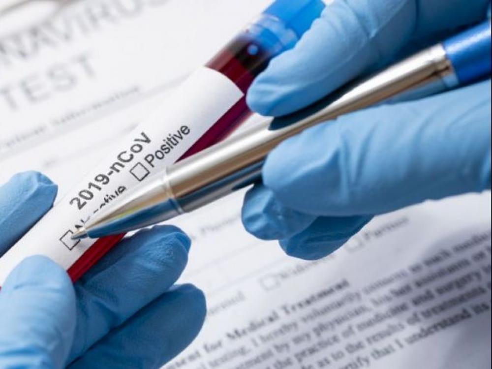 Vilnius ragina atlikti koronaviruso tyrimus visiems medikams, sergančiųjų artimiesiems