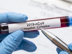 Aštuoniose savivaldybėse šią savaitę dėl koronaviruso bus testuojama intensyviau