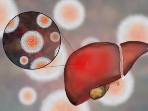 Hepatitą C nustatė netikėtai, bet laiku