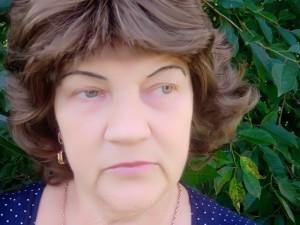 Išoperavus naviką moteris sako pajaunėjusi dešimtmečiu