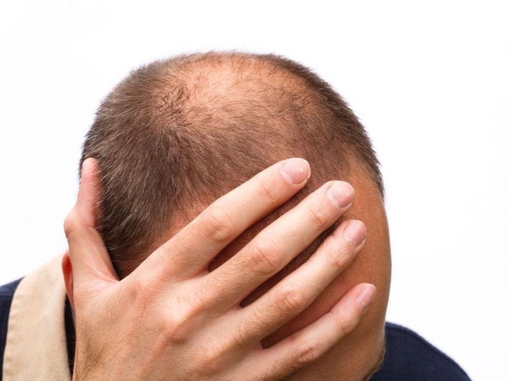 Kaip sustabdyti plaukų slinkimą?!