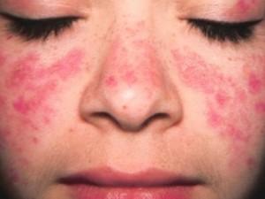 """""""Tūkstančio veidų"""" liga pavojinga ir be COVID-19"""