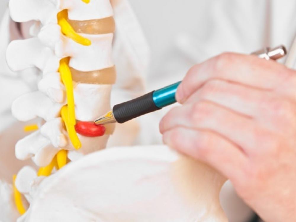 Stuburo išvaržos simptomus įveikė be vaistų