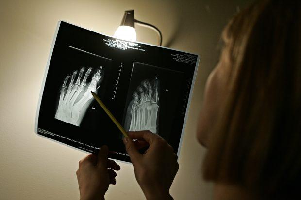 Gydytojai: kaulais reikia rūpintis, kol jie nepradėjo lūžti