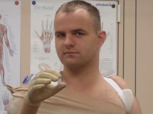 Lietuvis tapo pirmuoju pasaulyje su išskirtine bionine ranka