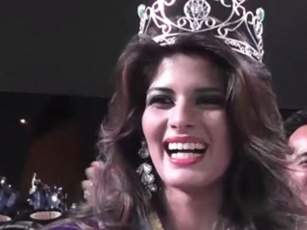 Ekvadoro grožio karalienę pražudė riebalų nusiurbimo procedūra