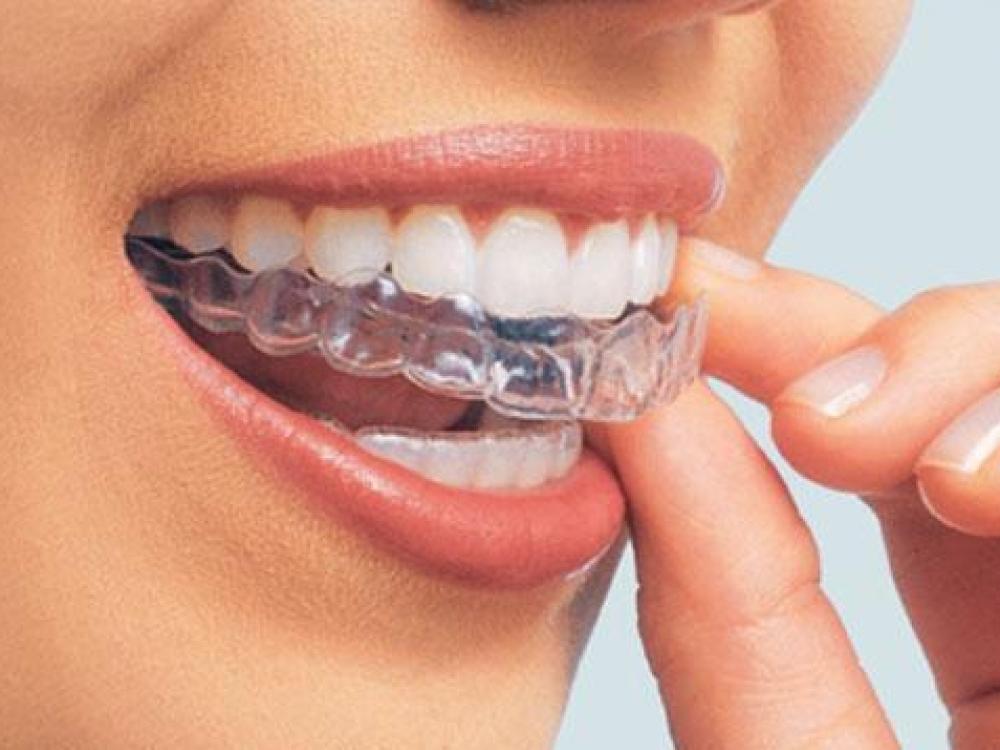 Dantų balinimo namuose pavojai
