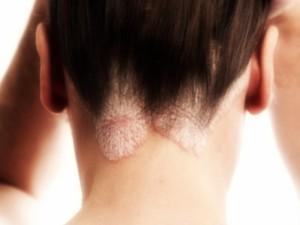 Sergu psoriaze ir esu alergiška vaistams