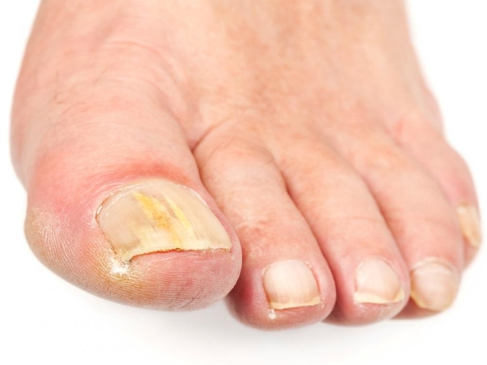 Prieš basučių sezoną – kova su kojų nagų grybeliu