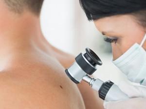 Kanadoje sparčiai daugėja melanomos atvejų