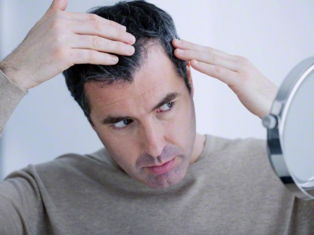 Vyrų siaubas - plaukų slinkimas