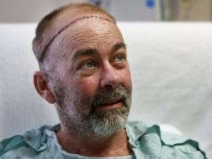 Neįtikėtinos galvos operacijos