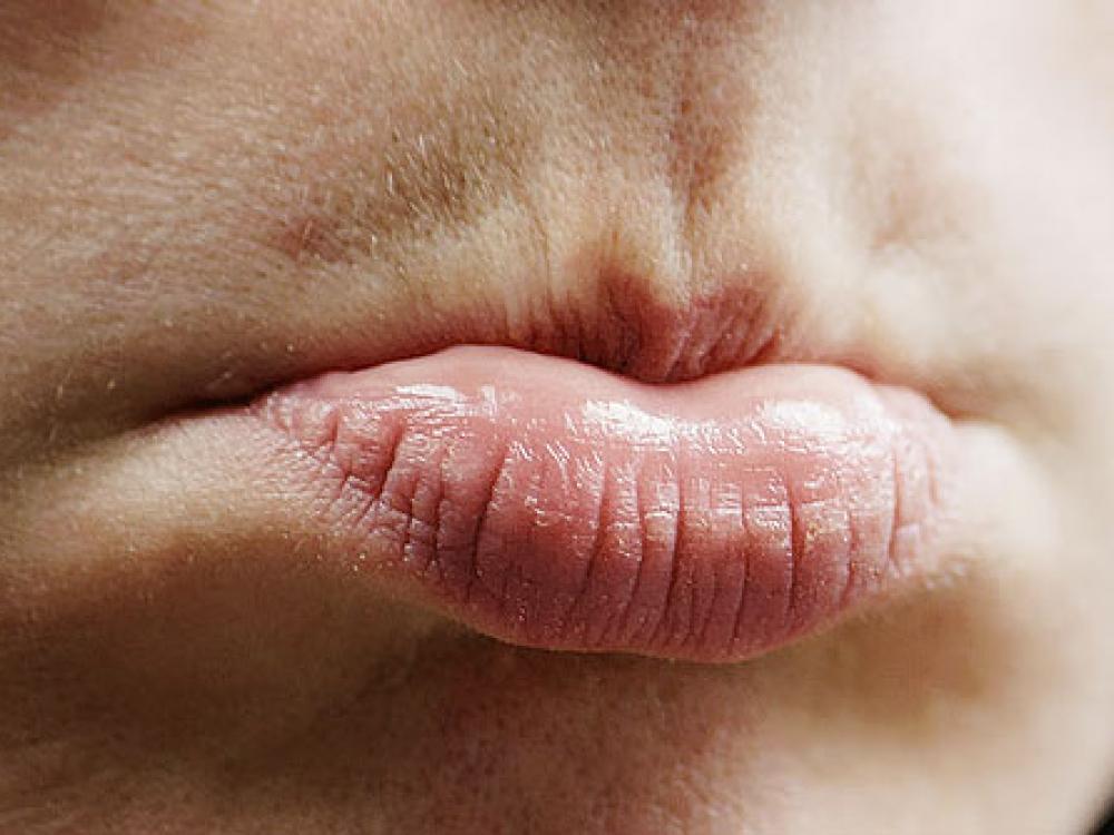 Kodėl skilinėja lūpų kampučiai?