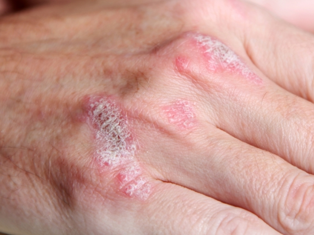 Neperprantama odos liga: kartais neatsilaiko ir sąnariai