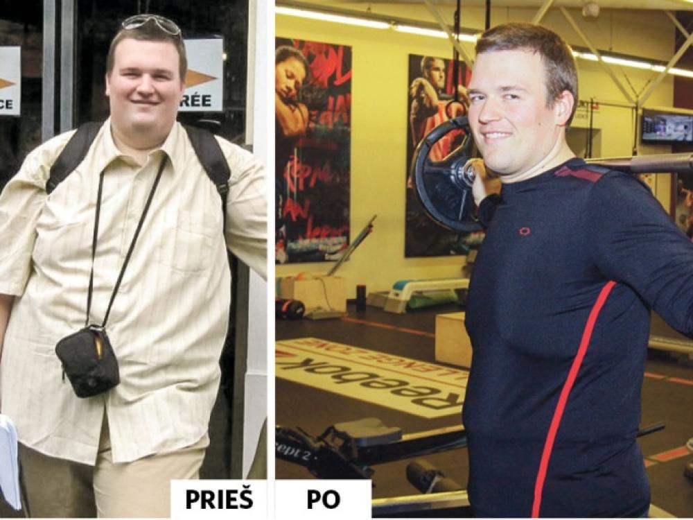 Nutukimą gydytis privertė nesėkmingos darbo paieškos