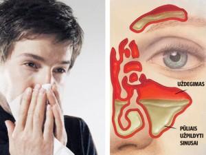 Nuo slogos iki sinusito – tik trumpas žingsnis