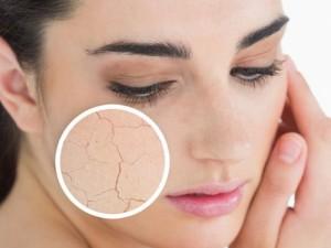 Apklausa: 75 procentų lietuvių nepatenkintos savo veido odos būkle