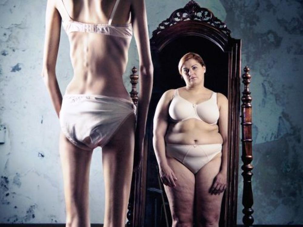 Anoreksija: liekno kūno kultą laisto ir netekties ašaros