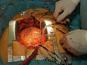 Infekcinis endokarditas: ligą lydi paprasti į peršalimą panašūs simptomai