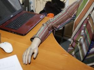 Jauna moteris: esu priversta nešioti purviną protezą