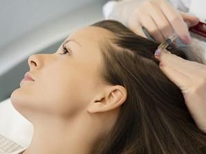 Kada nuo plaukų slinkimo padės mezoterapija