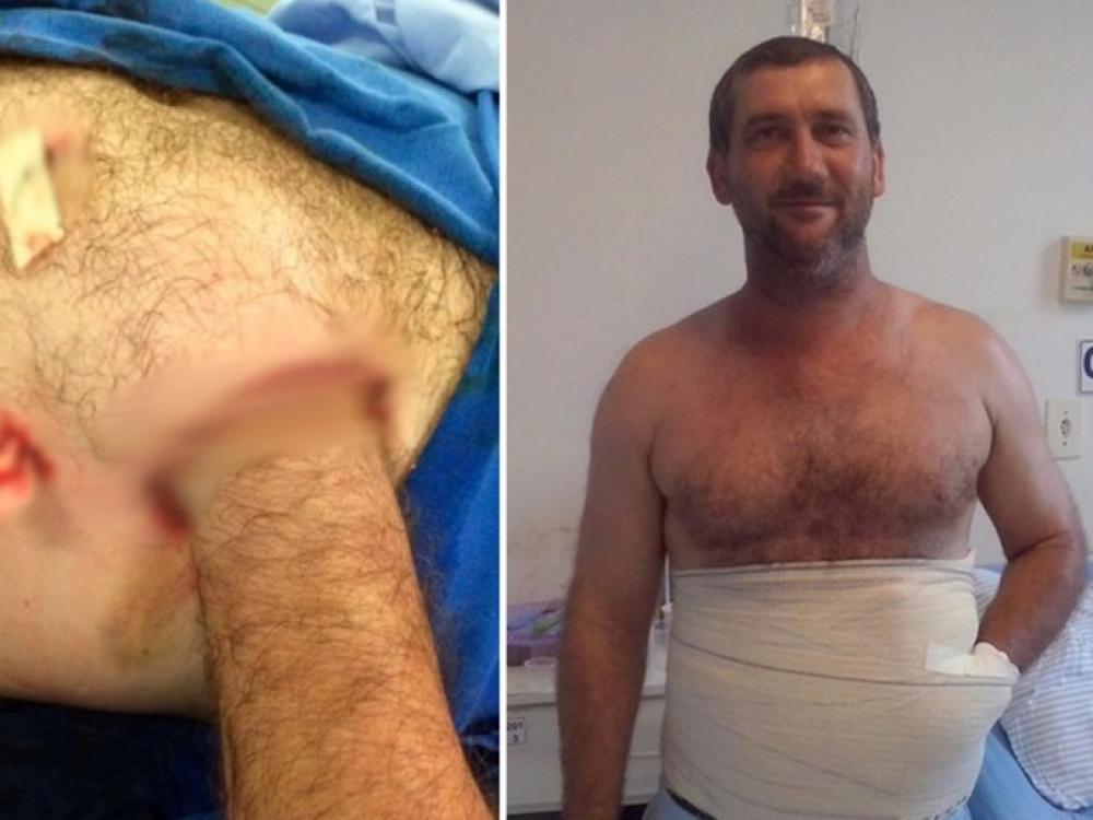 Brazilijos medikai paciento ranką įsiuvo į pilvą