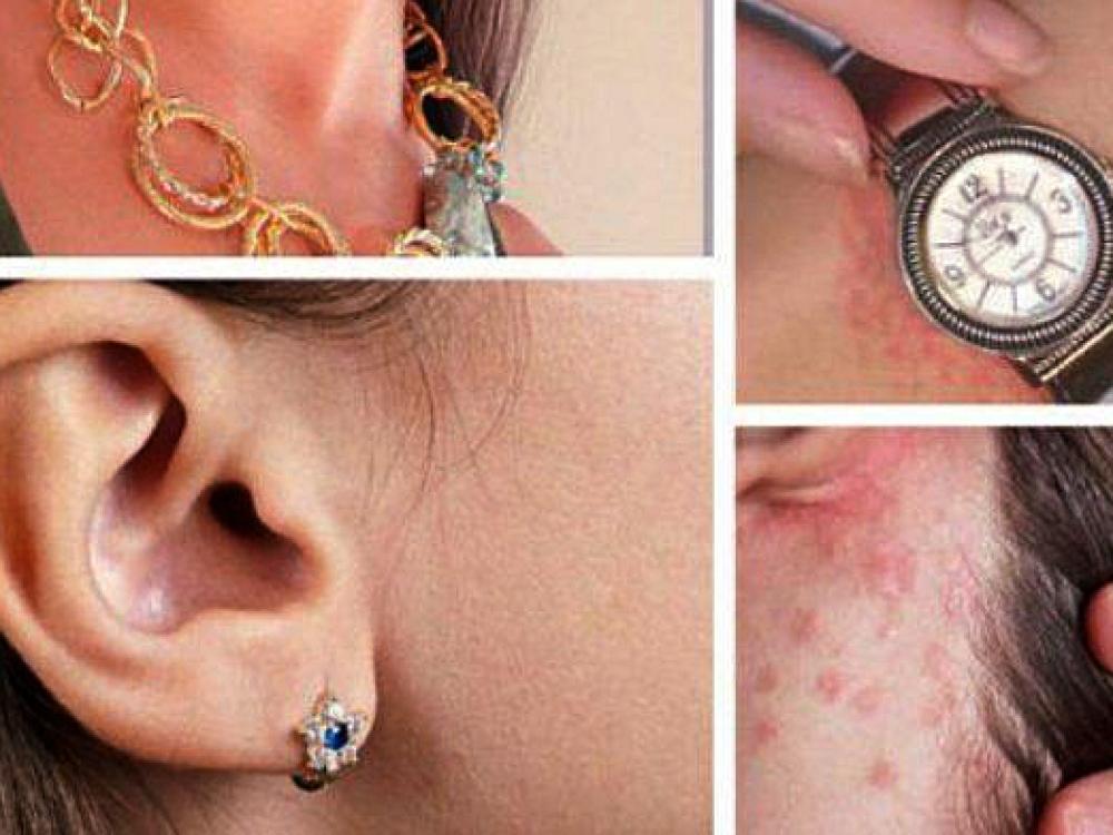 Odos bėrimo priežastys gali slypėti ten, kur nė neįsivaizduojate