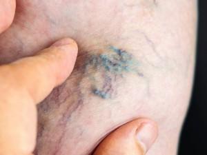 Venų trombozė – dažniausiai ilgo nejudrumo pasekmė