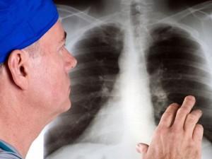 Idiopatinė plaučių fibrozė – kvėpavimą atimanti liga