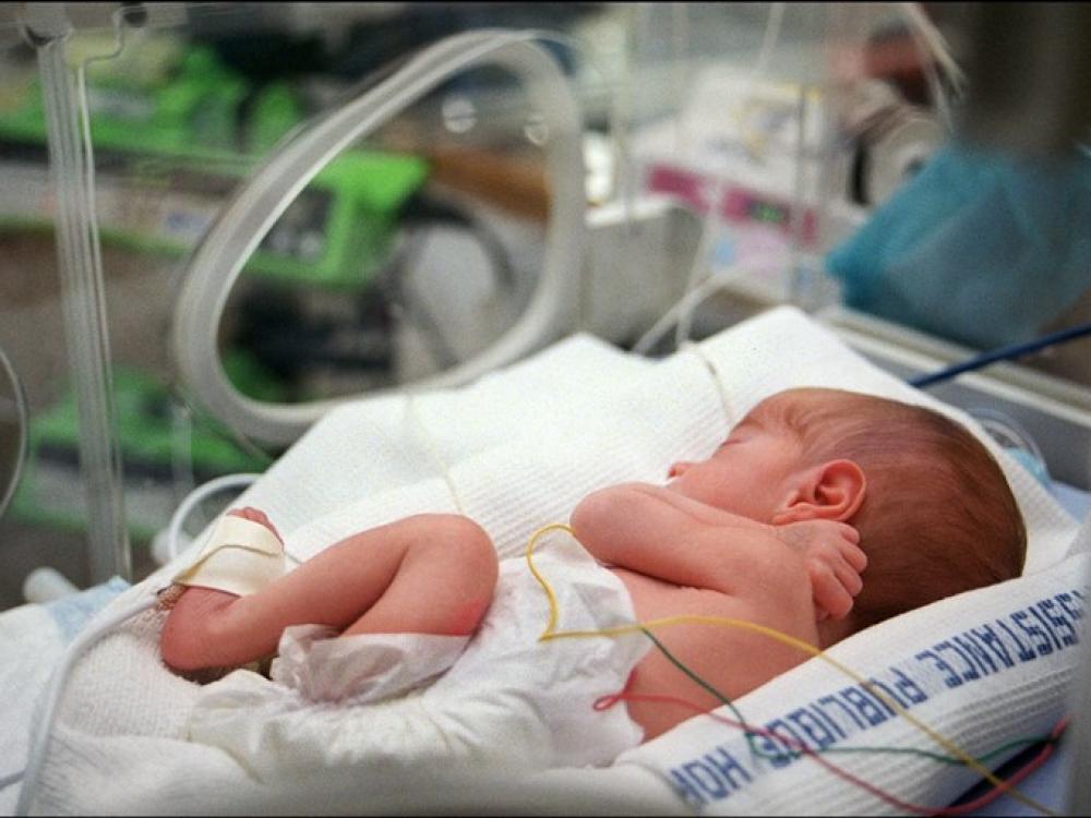 Neišnešiotiems kūdikiams – efektyvesnis gydymas
