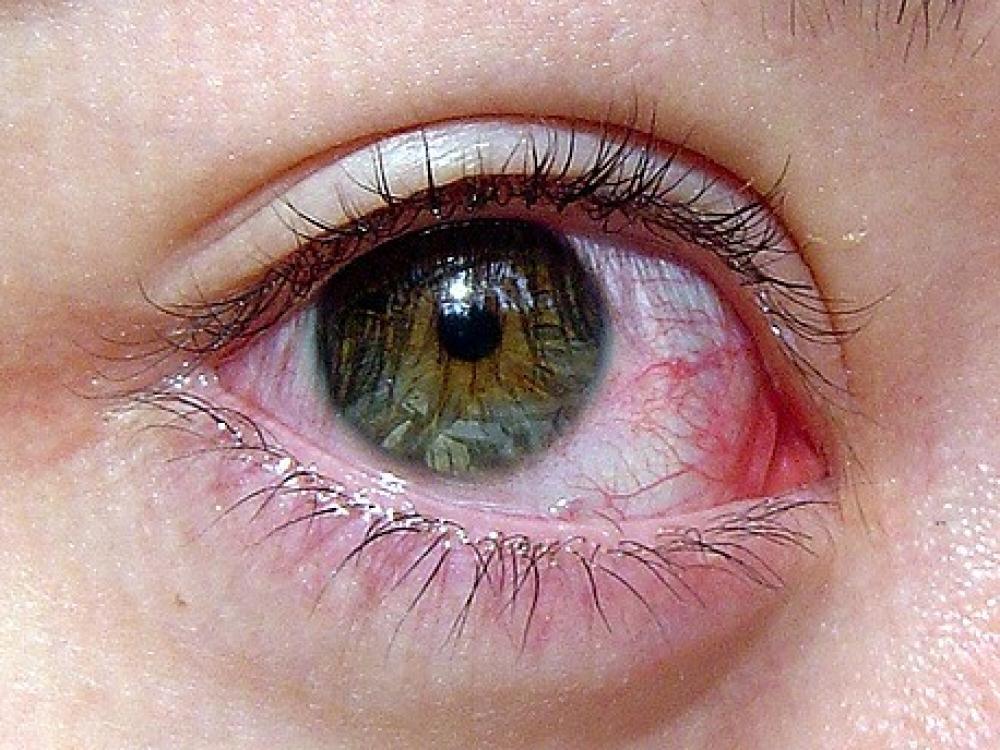 Sausos akys signalizuoja apie rimtą ligą