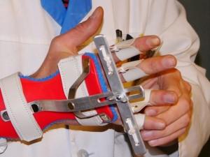 Įsigaliojo nauja ortopedijos techninių priemonių kompensavimo tvarka