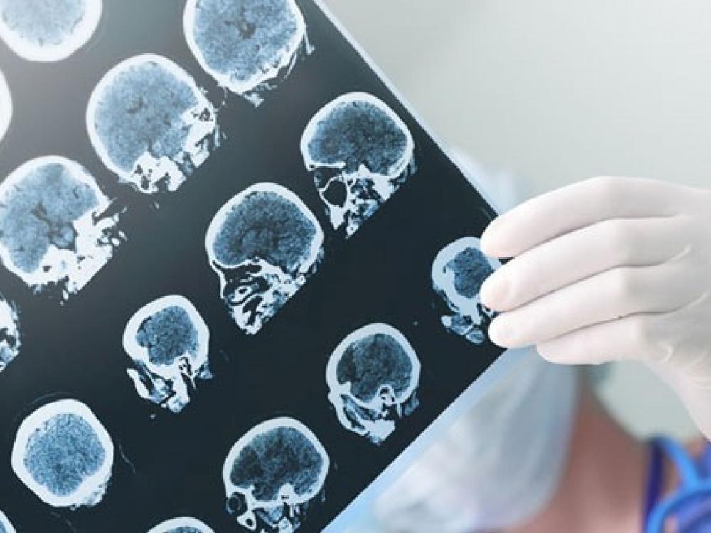 Įžiebė viltį pagyti nuo epilepsijos
