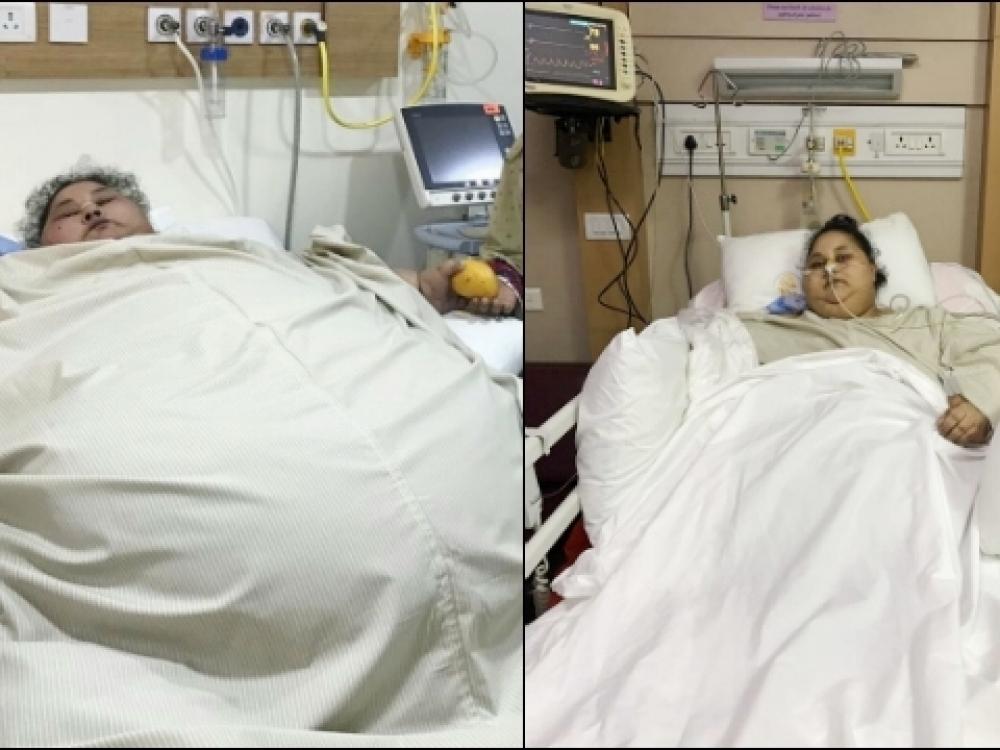 Sunkiausia pasaulio moteris po operacijos palengvėjo šimtu kilogramų