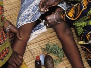 Jungtinės Tautos ragina kovoti su moterų žalojimu