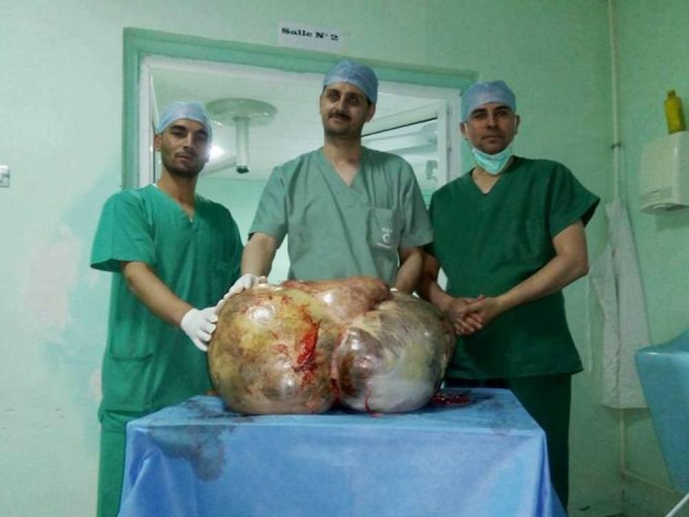 Alžyro medikai skelbiasi išoperavę gigantišką auglį