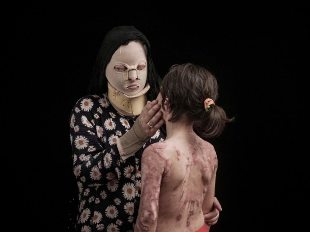 Iranas Kerstas Rugstis Nudegimai Ateitis Moterys Lsveikata Lt