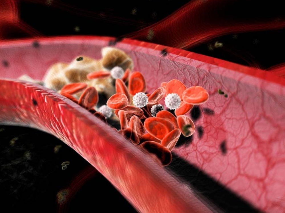 Apie cholesterolio pavojų