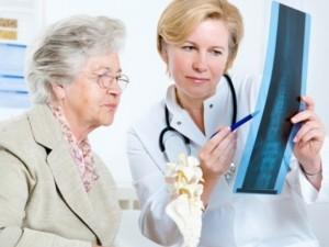 Pasaulinei osteoporozės dienai: kaip atitolinti trapių kaulų ligą?
