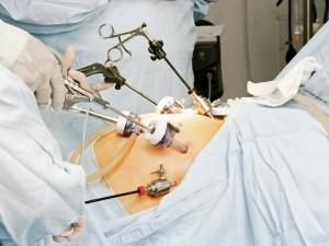 Kompetencijos centro prostatos vėžiui gydyti Lietuvoje pagrindas – didžiulė patirtis ir profesionalumas