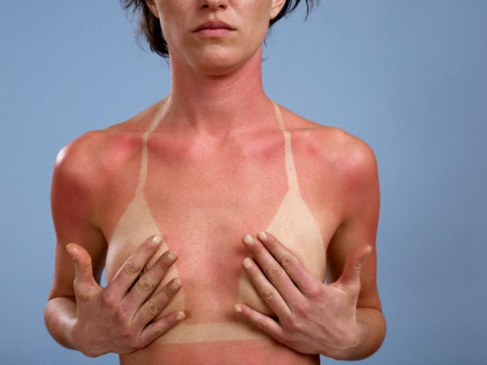 Kaip elgtis nudegus saulėje?