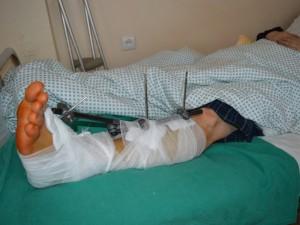 Kauno klinikinės ligoninės traumatologai pluša be atokvėpio