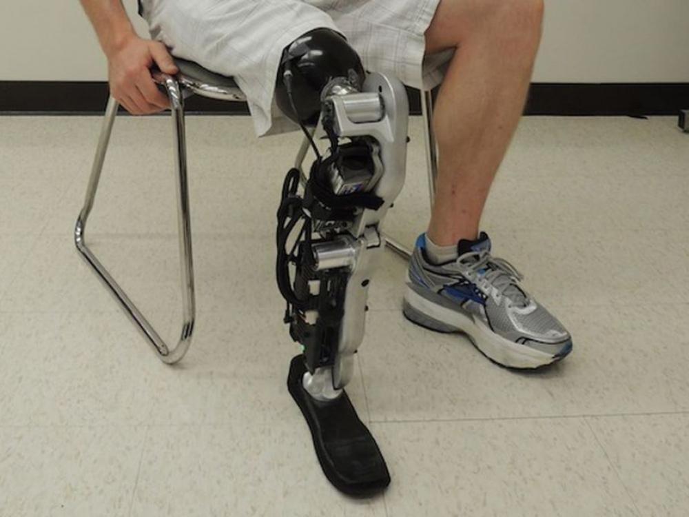 Modernūs protezai gali būti kompensuojami bet kokio amžiaus pacientams