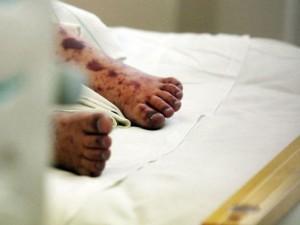 Nuo meningokokinės infekcijos mirė trimetė