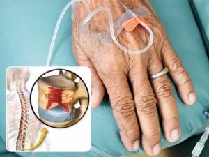 Nepraranda vilties įveikti sunkią kraujo ligą