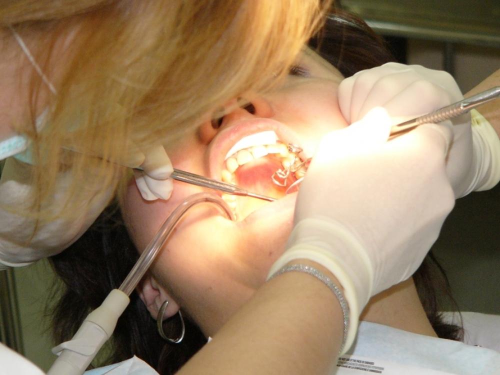 Burnos higienistų dalia – apšokinėti odontologus