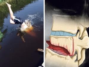 Nesėkmingas šuolis į ežerą vos nepavertė luošiu